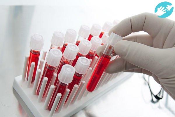 Перед зачатием обязательно проверяется кровь супругов