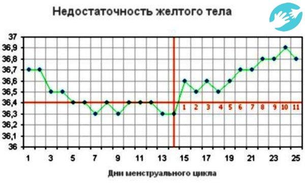Температура при беременности 36.6