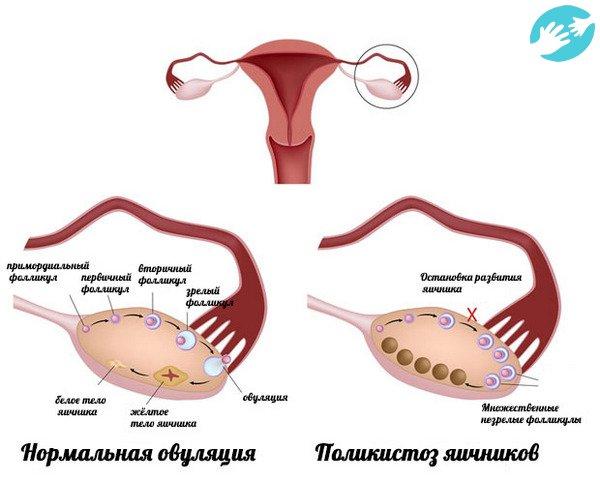 Беременность при мультифолликулярных яичниках форум