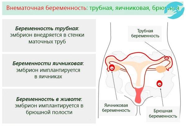 Бывает ли при внематочной беременности температура